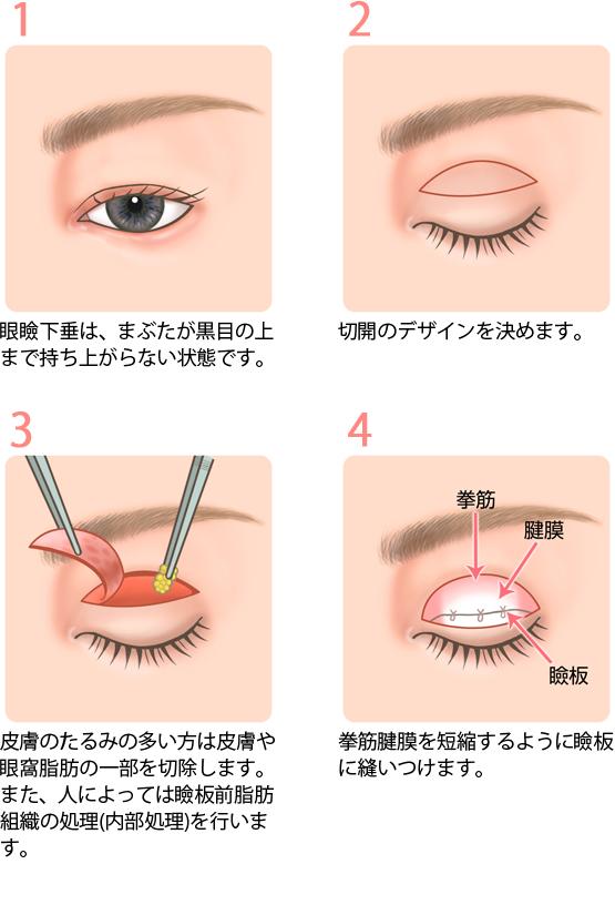 眼瞼下垂症の手術方法1
