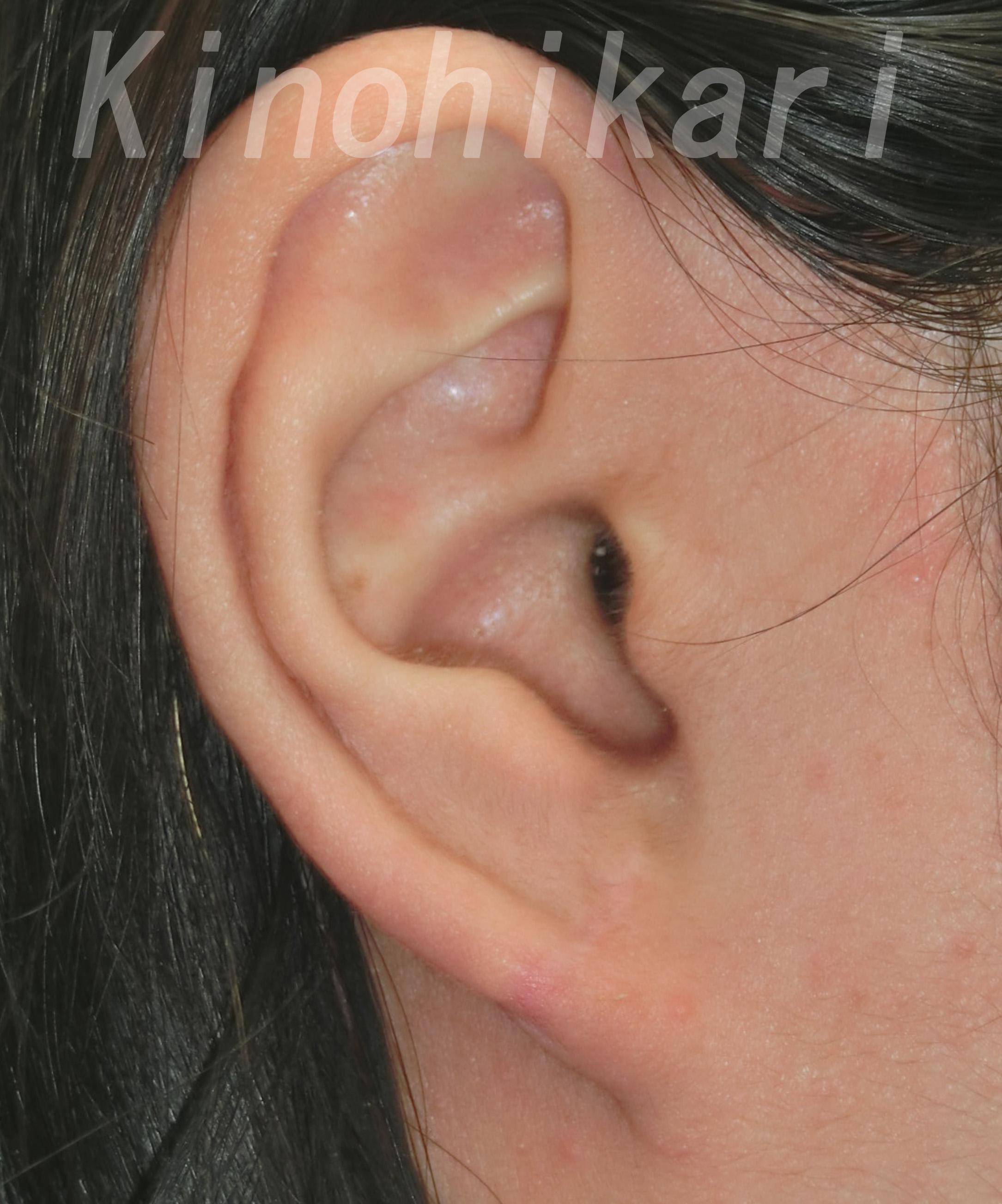の ホクロ 耳 後ろ の