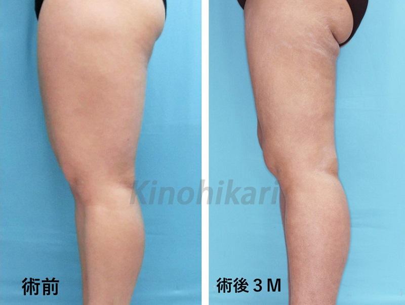 【脂肪吸引】5600cc吸引・太ももを部分痩せ 20代女性【症例No.29Y090118】