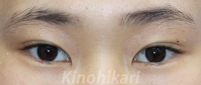 【二重埋没法】目の形を活かした二重に 10代女性【症例No.29Y072954】