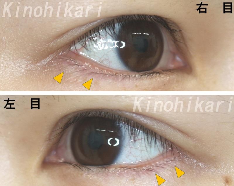 【たれ目+眼瞼下垂】つり目の解消と大きな目に 20代女性【症例No.29Y0000137】