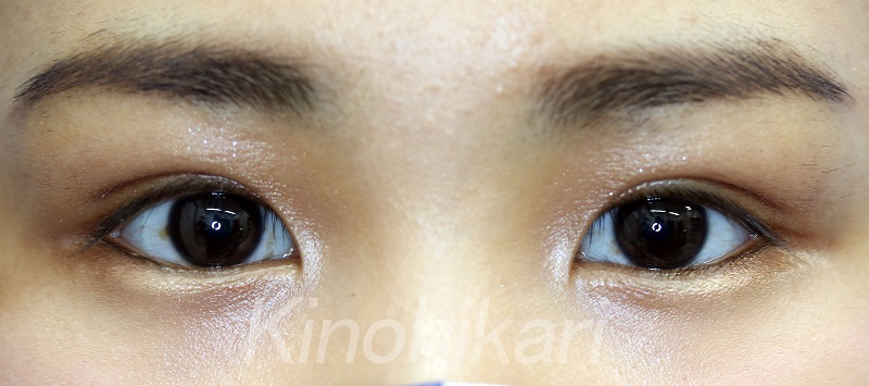 【二重埋没法】瞳がしっかりと見えるように 10代女性【症例No.29Y0000147】