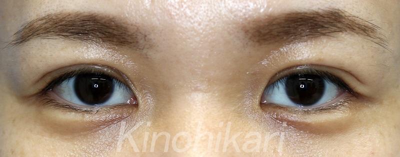 【二重埋没法】重たい瞼をぱっちり二重に 30代女性【症例No.29Y040780】