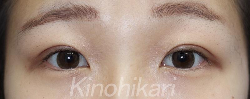 【二重埋没法】眉の雰囲気に合わせて柔らかい目に 20代女性【症例No.29030993】