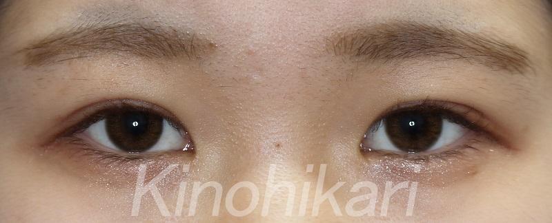 【二重埋没法】余剰皮膚を改善しまつ毛も上向きに 10代女性【症例No.29Y031098】