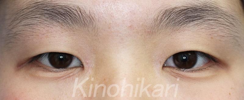 【二重埋没法】眠そうな目を改善 10代女性【症例No.29Y0324107】
