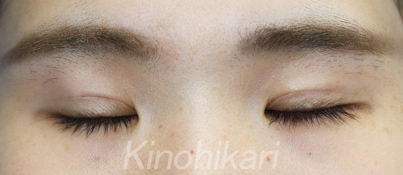 【二重埋没法】瞳の綺麗さを活かして二重に 20代女性【症例No.29Y110166】