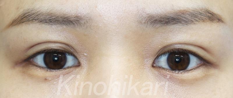 【二重埋没法】左右対称な目に 20代女性【症例No.29Y0319108】