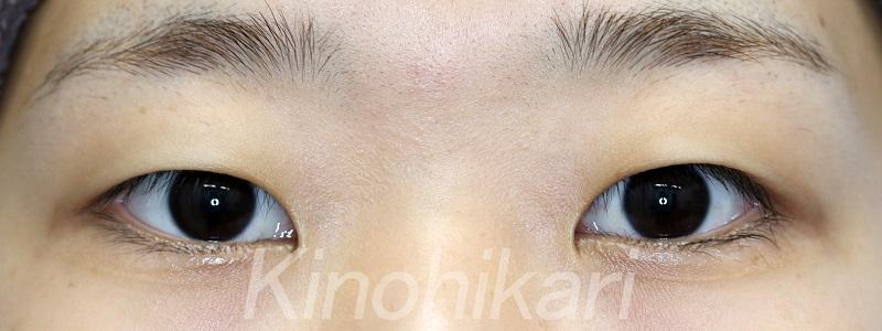 【二重埋没法】黒目がはっきり見える目に 10代女性【症例No.29Y0000133】