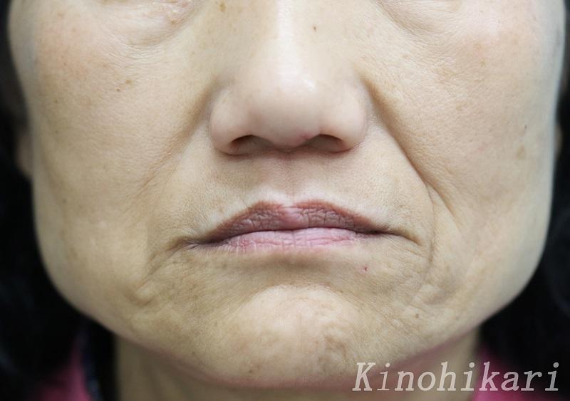 【ヒアルロン酸注入】鼻唇溝の深いしわを改善 50代女性【症例No.29Y021813】