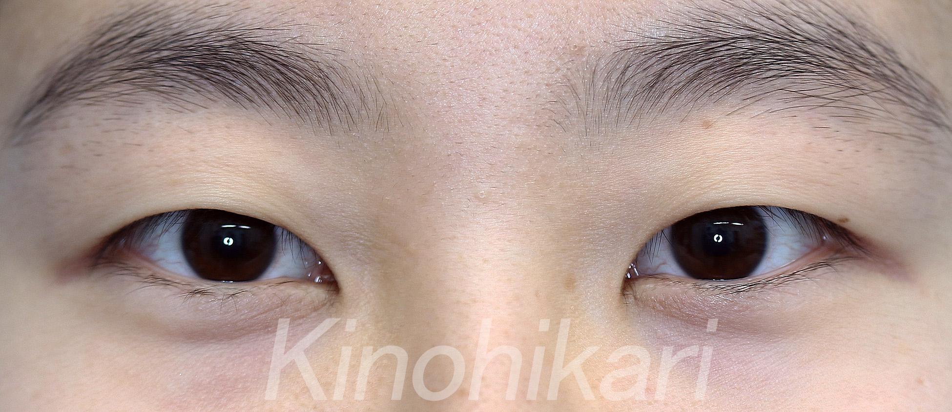 【二重埋没法】二重にすることで瞳も大きく 10代女性 【症例No.29Y030101】