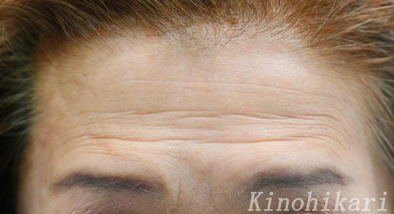 【ボトックス】眼瞼下垂症による額のしわを改善 50代女性【症例No.29Y120610】