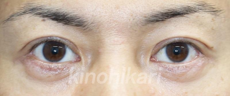 【眼瞼下垂】中等度の眼瞼下垂を自費診療で 40代男性【症例No.29Y060156】