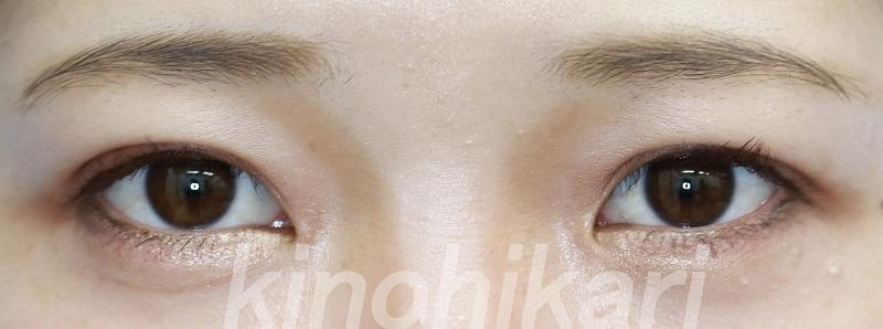 【二重埋没法】皮膚の被りも改善し二重に 10代女性【症例No.29Y092161】