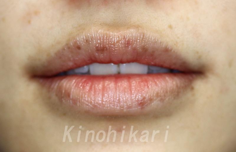 【5分間シミ取り放題】唇のシミを取り放題で 20代女性【症例No.29Y0000142】