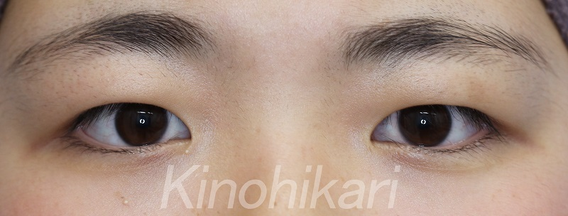 【二重埋没法】厚い瞼を自然な二重に 10代女性【症例No.290315101】
