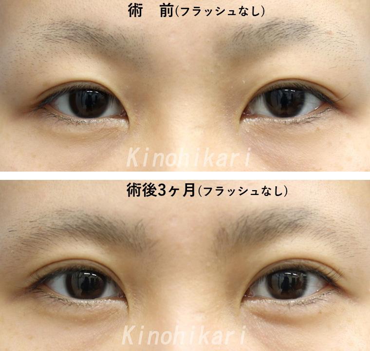 【二重切開+ROOF切除】目尻側の重みを改善 20代女性【症例No.29Y0123104】