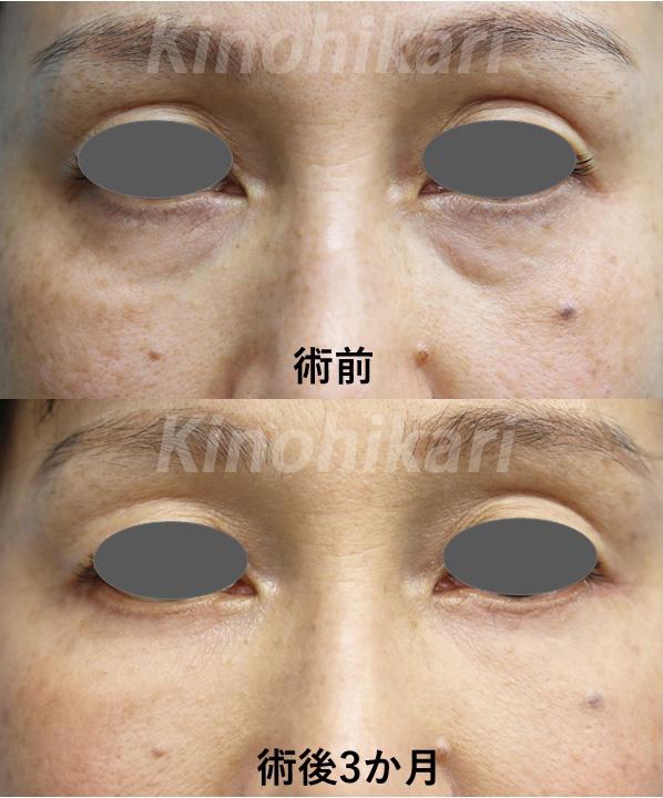 【ハムラ法+脂肪注入】疲れた印象を改善 40代女性【症例No.29Y111621】