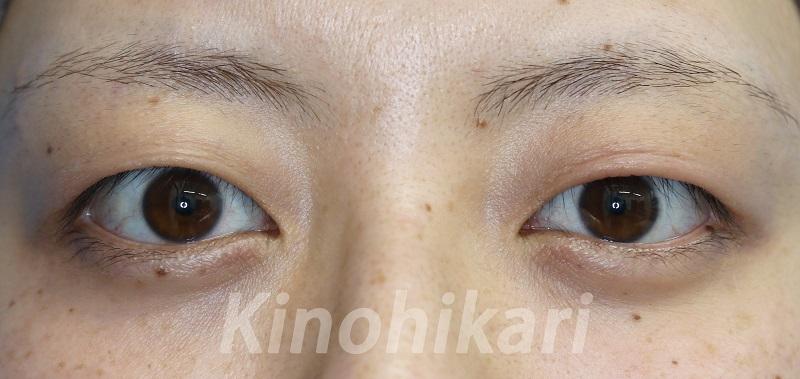 【二重埋没法】大きな瞳をより魅力的に 20代女性【症例No.29Y050330】