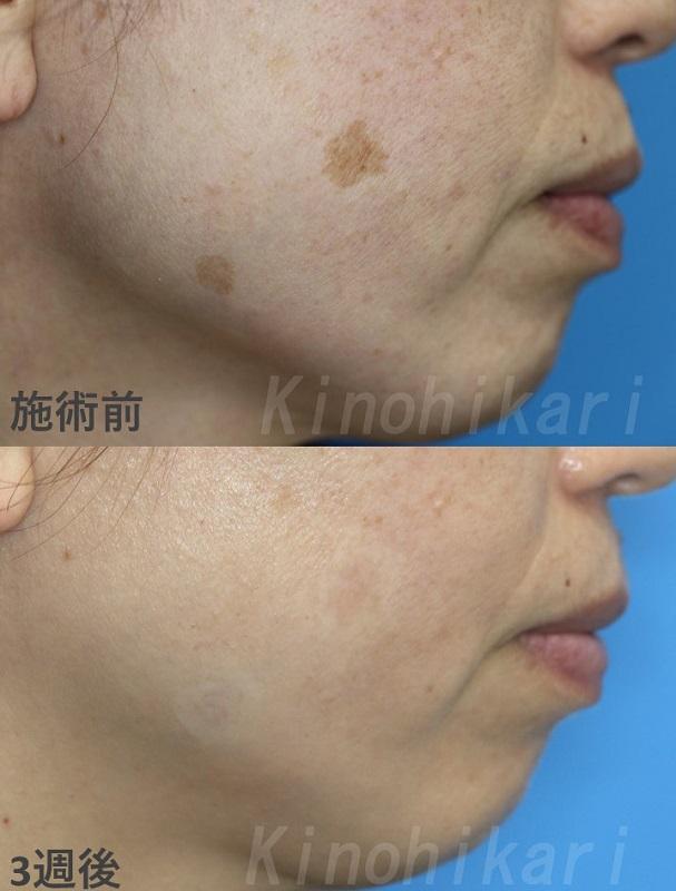 【5分間シミ取り放題】顔の目立つシミを改善 40代女性【症例No.29Y031297】