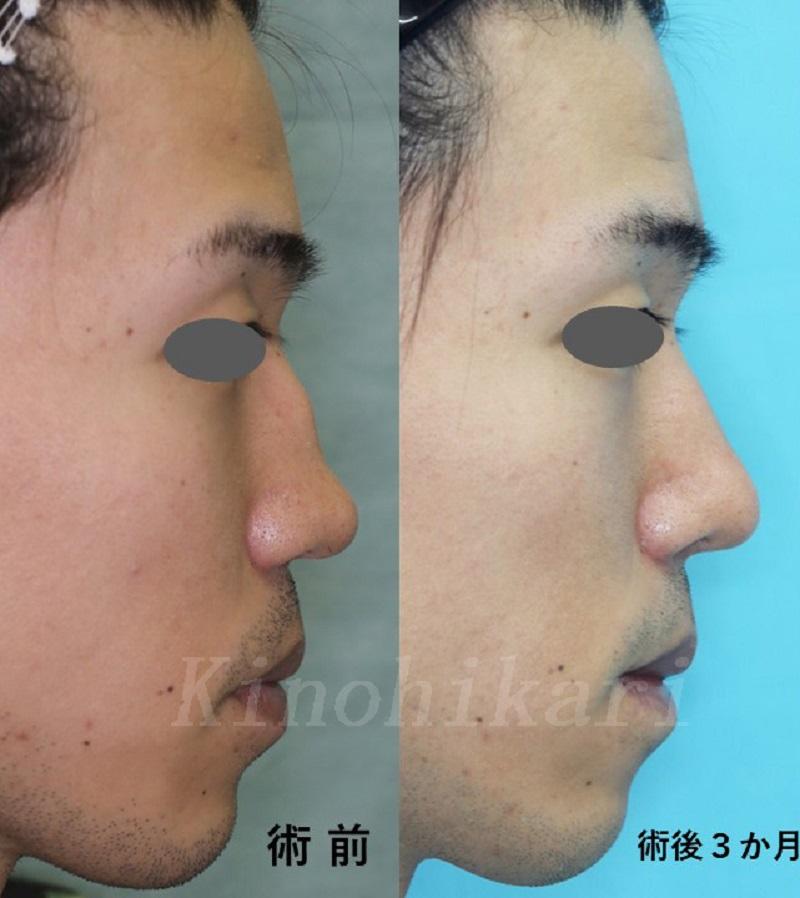 【外傷性斜鼻】他院術後の段鼻・低鼻の修正 20代男性【症例No.29Y071941】
