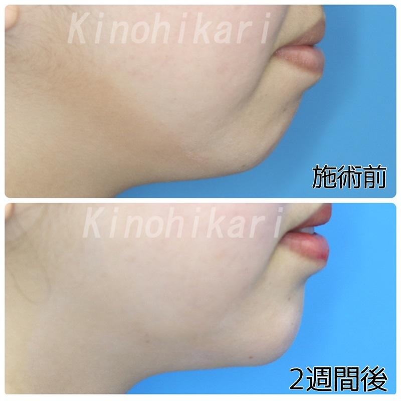 【ヒアルロン酸注入】小さな顎を大人っぽく 10代女性【症例No.29Y0422112】
