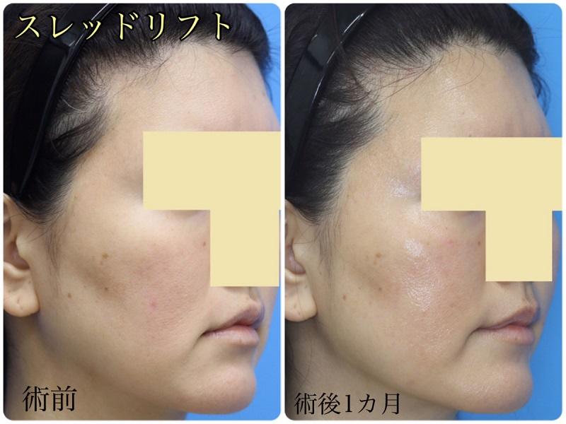 【スレッドリフト】顔全体の引き上げ 30代女性【症例No.29Y0000150】