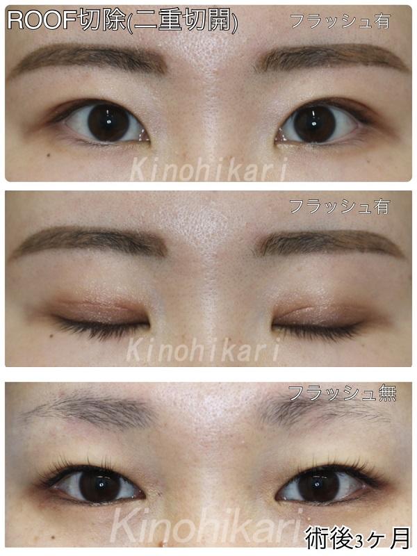 【ROOF切除】目尻側(外側)の厚みを改善させ二重に 10代女性【症例No.29Y0000284】