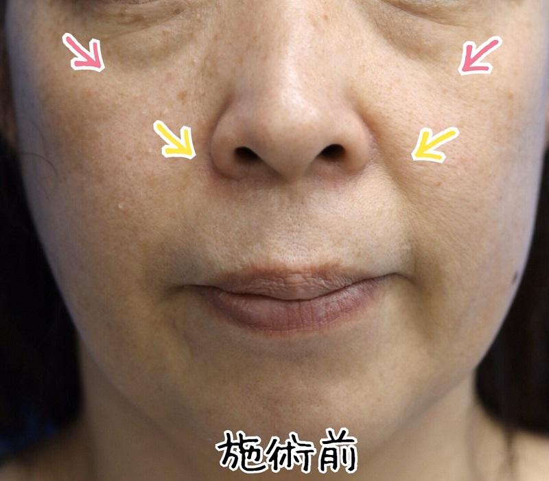 【ヒアルロン酸注入】中顔面・鼻唇溝への注入 50代女性【症例No.29Y020369】