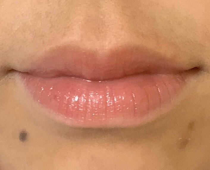 【アートメイクリップ】唇の血色アップ 30代女性【症例No.29Y122689】