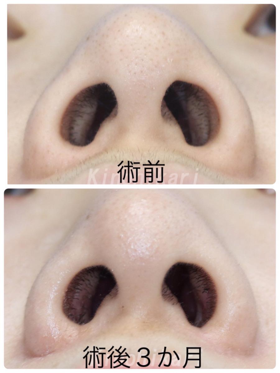 【鼻翼縮小】小鼻縮小 内側 20代女性【症例No.29Y010588】