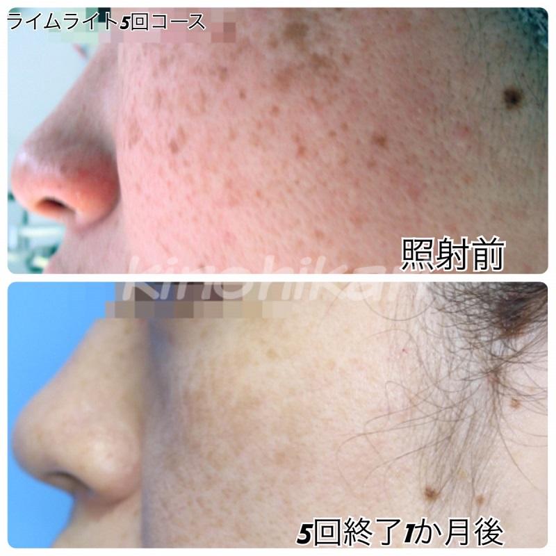 【ライムライト】顔全体のそばかすを目立たなく 30代女性【症例No.29Y0000128】