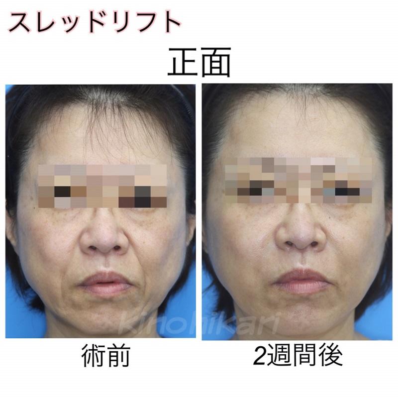 【スレッドリフト】ヒアルロン酸(鼻唇溝)との併用施術 50代女性【症例No.29Y0000130】