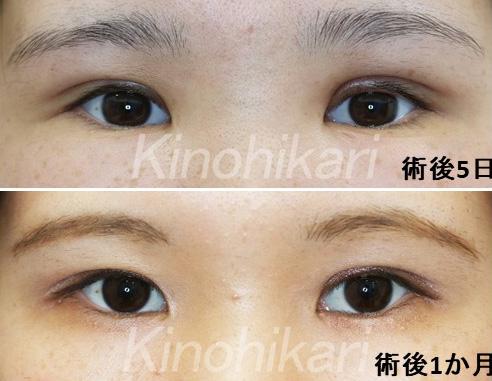 【眼瞼下垂+ROOF切除】厚ぼったい瞼の改善 20代女性【症例No.29Y080263】