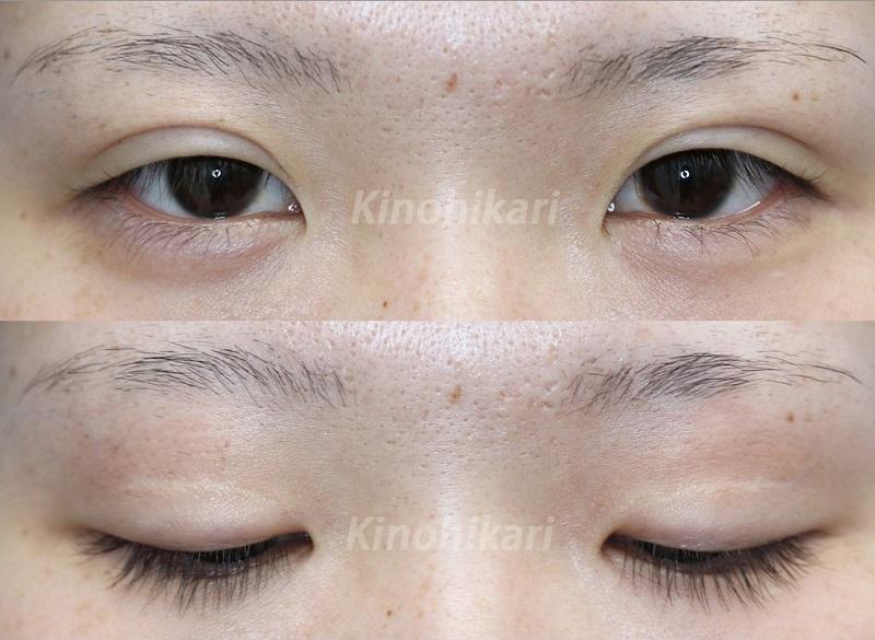【たれ目・目頭切開・上眼瞼皮膚切除】他院修正手術 20代女性【症例No.29Y042255】