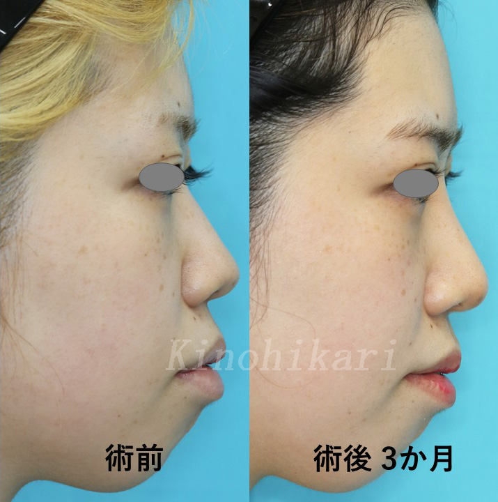 【鼻中隔延長】鼻が低く、鼻先を斜め下に移動させたい方 20代女性【症例No.29Y031002】