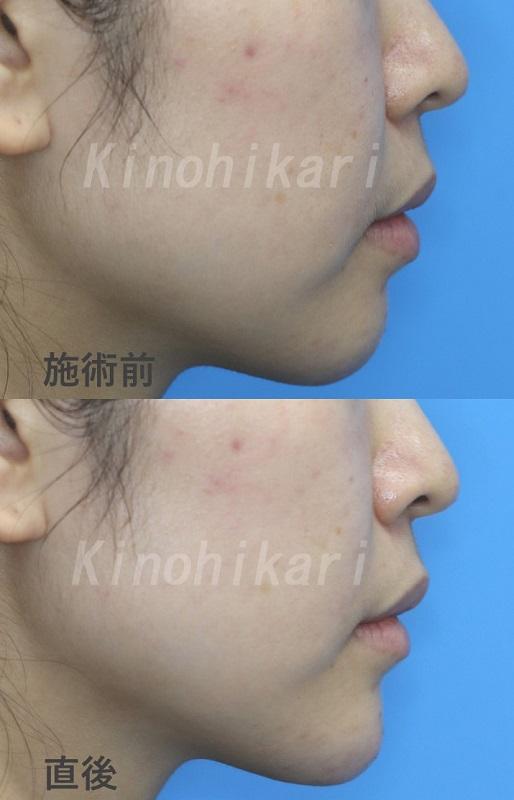 【顎ヒアルロン酸】Eラインの整った横顔へ 20代女性【症例No.29Y022594】