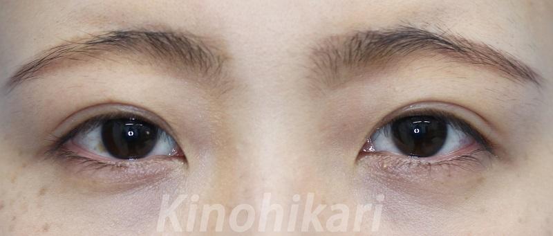 【二重埋没法】瞳の見え方を揃えてより美しく 20代女性【症例No.29Y062362】