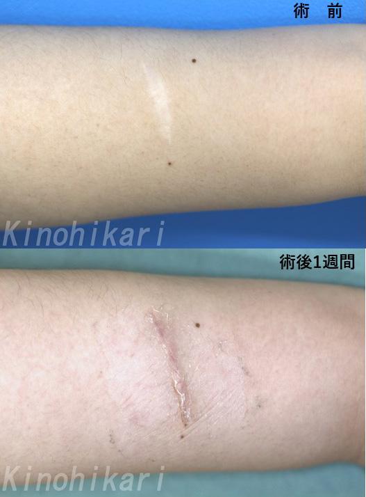 【傷跡修正】左前腕の傷を目立ちにくく 30代女性【症例No.29Y040199】