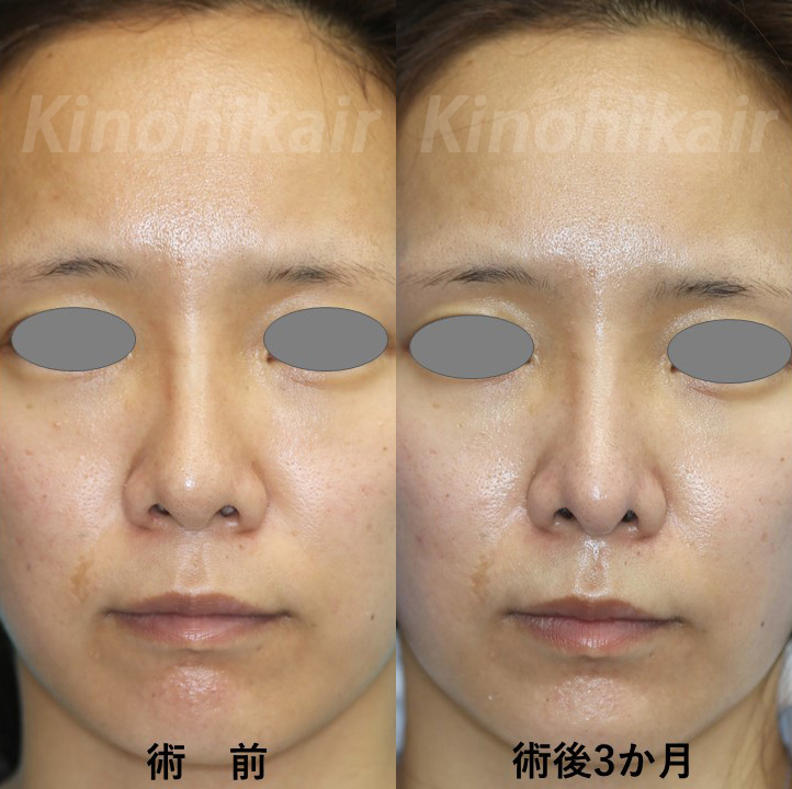 【鼻中隔延長】上向きの鼻を下向きに 20代女性【症例No.29Y120826】