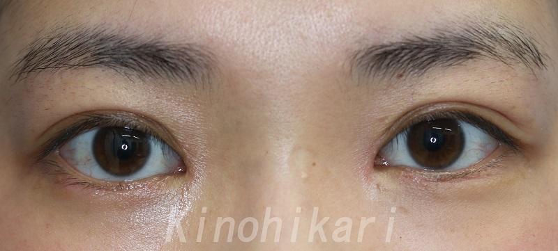 【目頭切開】目の間隔を狭く 20代女性【症例No.29Y0000144】