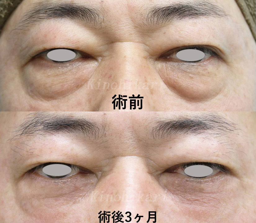 【目の下のタルミ取り】ハムラ法(経皮的)でクマ改善 40代男性 【症例No.29Y042803】