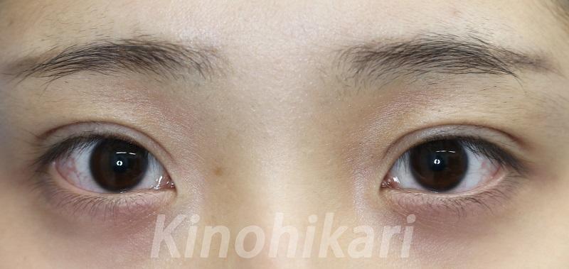 【二重埋没法】眉と瞳の距離の短い平行二重に 10代女性【症例No.29Y041947】