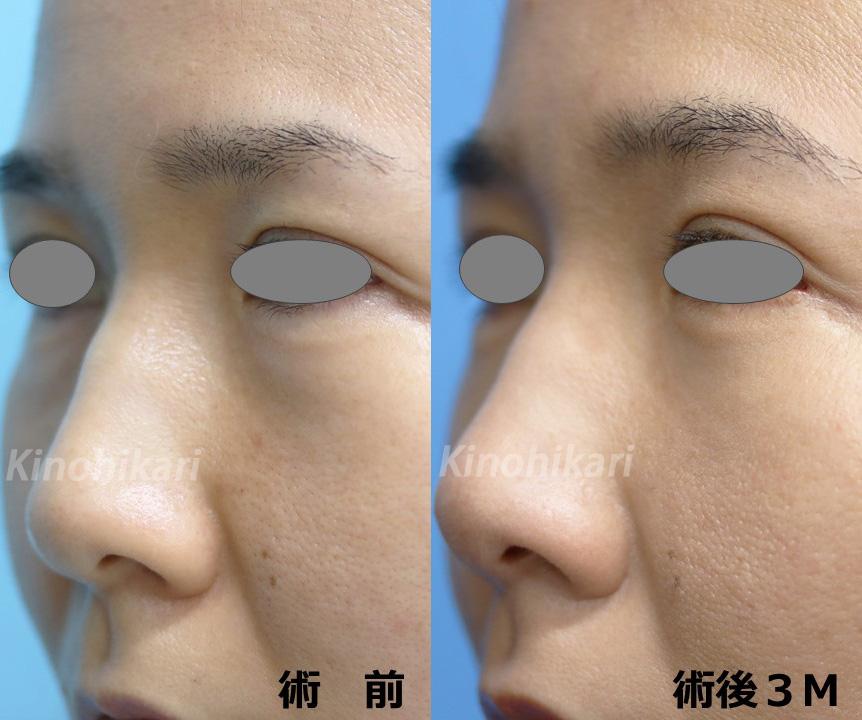 【経結膜ハムラ法】目の内側からクマ改善 40代女性【症例No.29Y120543】