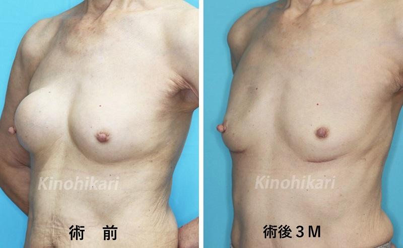 【乳房シリコン抜去】他院手術後の変形の修正 70代女性【症例No.29Y0000192】