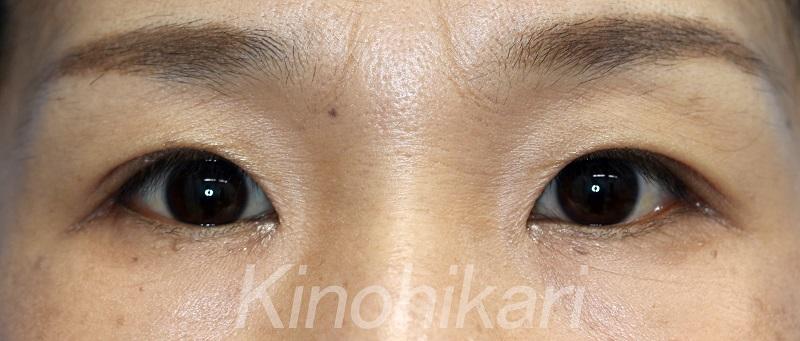 【二重埋没法】加齢による瞼のたるみを改善 40代女性【症例No.29Y0000177】