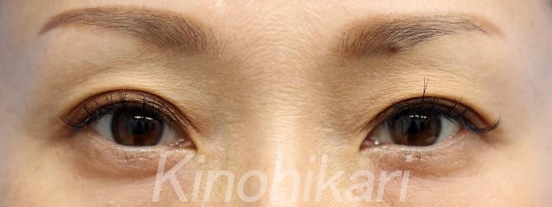 【目の上のくぼみ】ヒアルロン酸で手軽に 40代女性【症例No.29Y0000185】