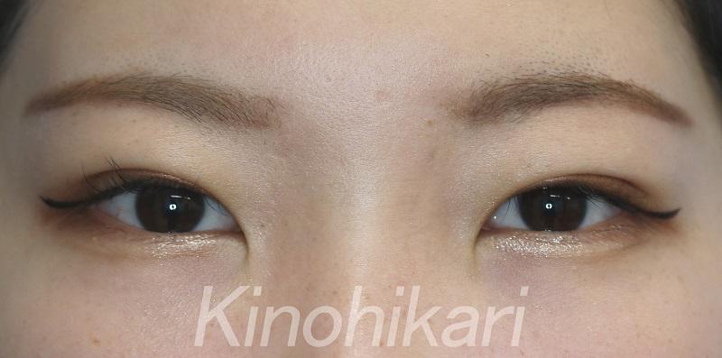 【二重埋没法】眉と目の距離を近く 20代女性【症例No.29Y0000223】