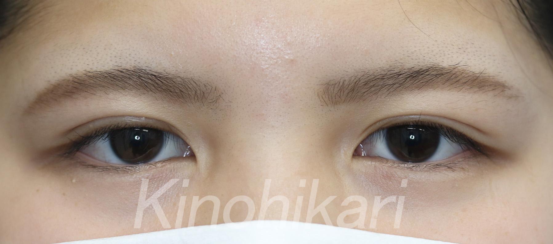 【二重埋没法】細く見える目を平行二重に 10代女性【症例No.29H0000233】