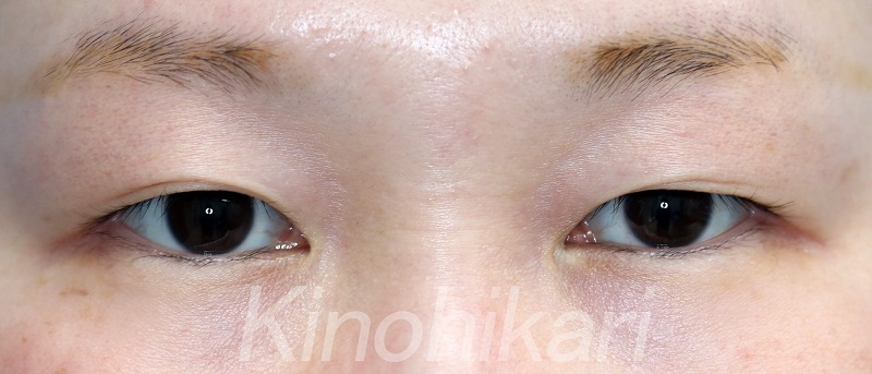 【二重埋没法】横長の目を丸く 30代女性【症例No.29Y0000172】